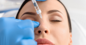 Using dermal fillers for a non-surgical rhinoplasty
